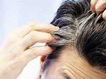 شامپو رفع سفیدی مو کاملاً گیاهی با تأثیر سریع و تضمینی