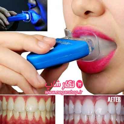 دستگاه سفید کننده دندان , سفید کننده دندان , سفیدکننده دندان , دستگاه سفید کننده دندان وایت لایت , دستگاه سفید کننده دندان White Light , دستگاه White Light