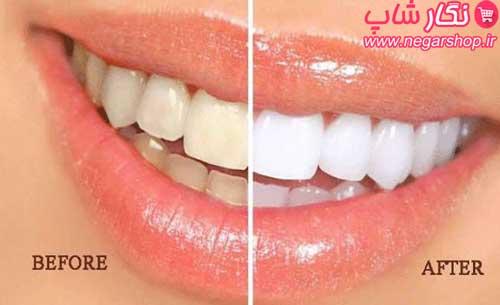 پودر زغال سفید کننده دندان , سفید کننده دندان میراکل , پودر سفیدکننده دندان , سفید کننده دندان خانگی , پودر زغال برای دندان , پودر زغال دندان